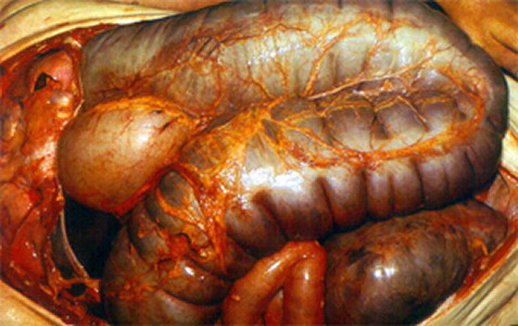 Probiotics To Prevent Cdiff Diarrhoea Flawed Evidence